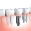 Pravilna oralna higijena zubnih implantata