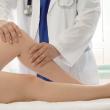 Posljedica neadekvatno liječenog osteoartritisa